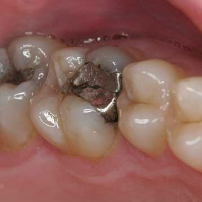 Amalgam Fillings Castlebawn Dental Practice Ltd