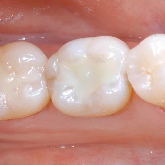 White Fillings - Castlebawn Dental Practice Ltd