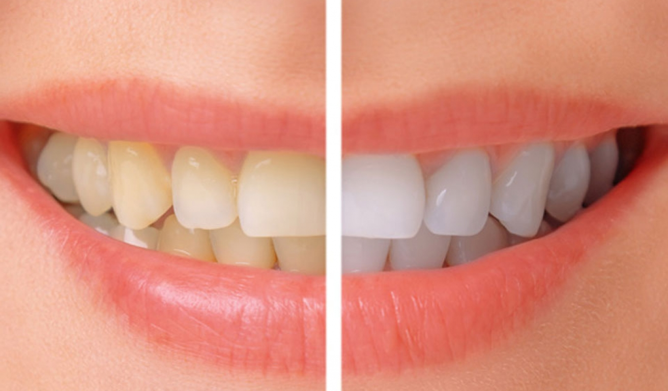 Whitening-before-after